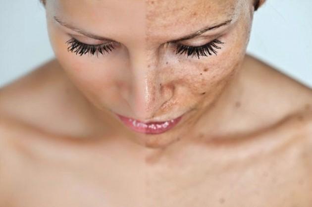 Manchas na pele como evitar?